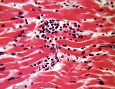 Focal lymphocytic myocarditis. Intermediate magnif