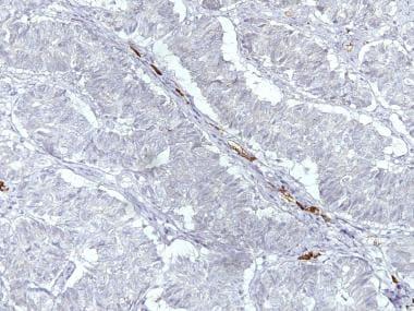 Sertoliform endometrioid carcinoma demonstrating n