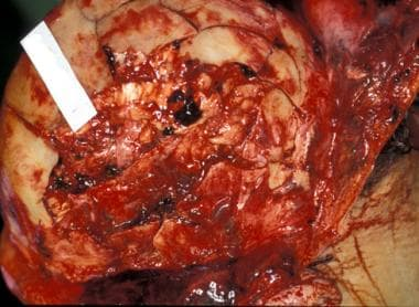 Comminuted fractures of the right frontoparietal s