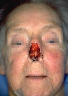Case 7. Preoperative view of subtotal nasal skin d