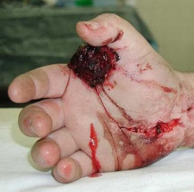 Crush injury to the hand created pressures high en