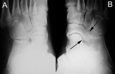 Medial oblique radiographs of both feet in a patie