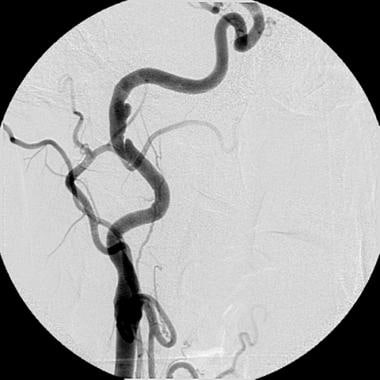Chronic subadventitial dissection of the right int