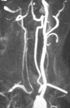 Gadolinium-enhanced magnetic resonance angiogram (