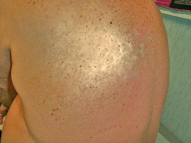 Hypopigmented rash in thoracic dermatome of posthe