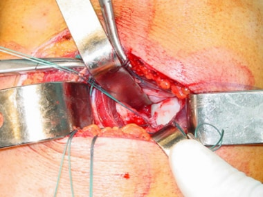 Suture anchors are inserted into the glenoid rim.