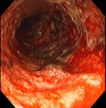Severe colitis noted during colonoscopy in a patie