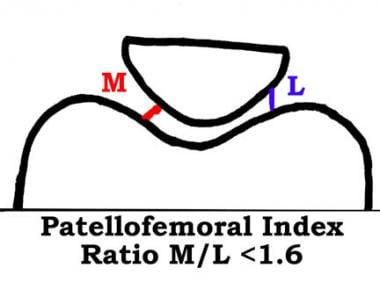 Patellofemoral arthritis. The patellofemoral index