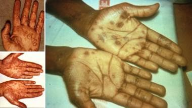 Syphilis. Palmar lesions observed in secondary syp