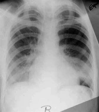 Expiratory radiograph of a patient with a small sp