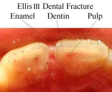 Cross section of an Ellis III dental fracture.