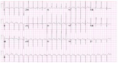 ECG from a child with a primum atrial septal defec