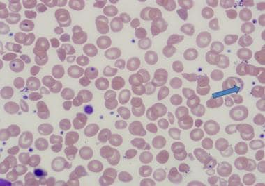 Basophilic stippling in thalassemia intermedia.