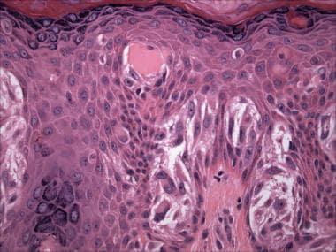 Spitz nevus (hematoxylin-eosin stain). Vertically