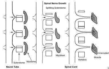 Vertebral morphogenesis; each vertebral sclerotome