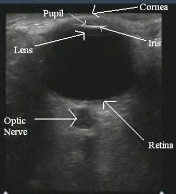 Ultrasound of the normal eye.