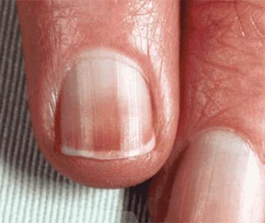 Lindsay nail (half-and-half nail).