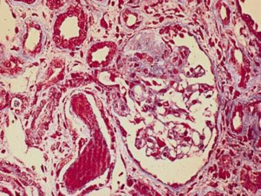 Light microscopy with trichrome staining showing t