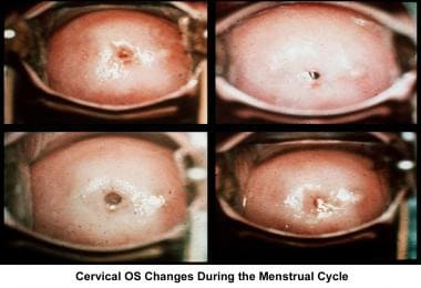 Infertility. Cervical os changes during the menstr