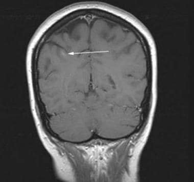 Coronal contrast-enhanced T1-weighted MRI reveals