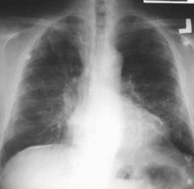 Case 1. Postero-anterior (PA) chest radiograph in