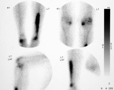 Technetium-99m diphosphonate bone scans obtained 2