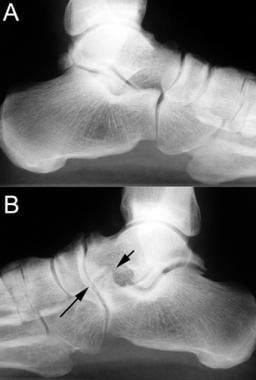 Lateral radiographs of both feet in a patient with