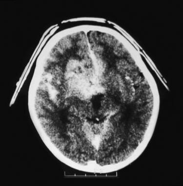 Patient with retinoblastoma, glaucomatous stage. I