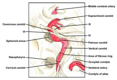 Intracranial course of the internal carotid artery