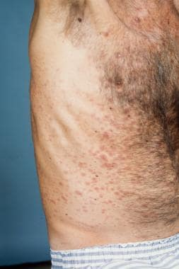 Diffuse truncal eruption of infiltrated papules an