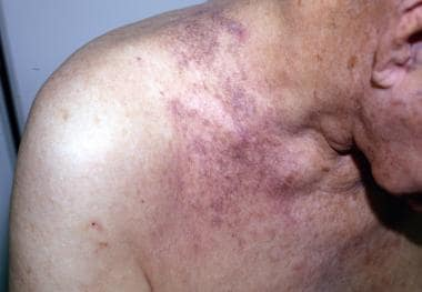 Reticulated pattern of pigmentation on the shoulde