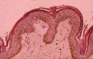 Classic histology for pityriasis rotunda demonstra