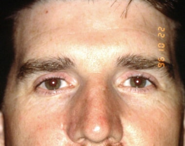 Three months postrepair (front view) showing intac