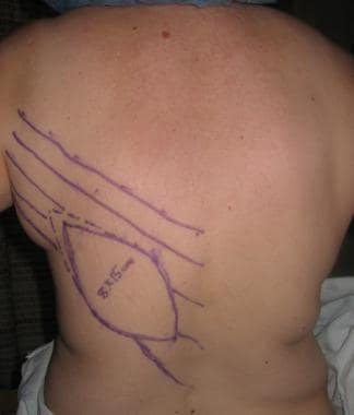 Latissimus flap, preoperative markings.
