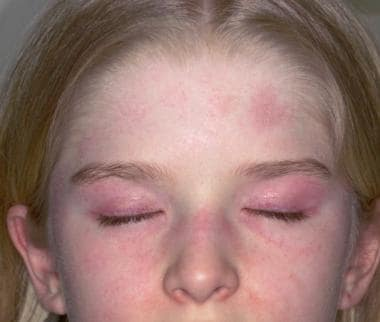 A characteristic, violaceous rash is present over
