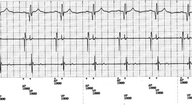 Telemetered ECG tracing showing atrioventricular (