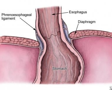 Relationship of the phrenoesophageal ligament to t