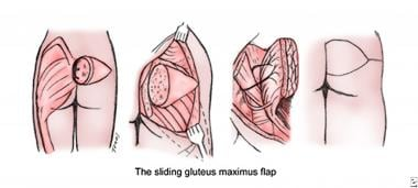 Larger sacral ulcers require use of bilateral flap