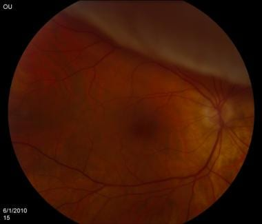 retinal detachment: practice essentials, background, pathophysiology, Skeleton