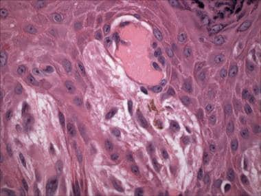 Spitz nevus (hematoxylin-eosin stain). Spindled me