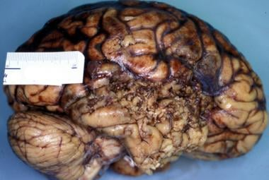forensic neuropathology overview definitions scene findings