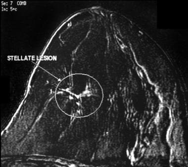 This lesion is seen as a stellate, modestly enhanc