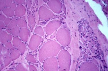 Dystrophinopathy, Duchenne muscular dystrophy, myo
