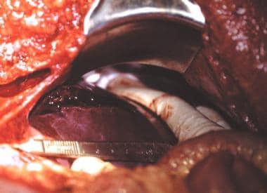 Penetrating abdominal trauma. Tangential gunshot w