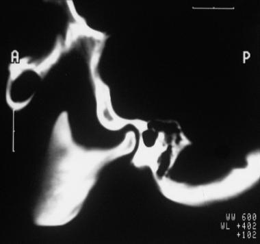 Sagittal CT cut through the temporomandibular join