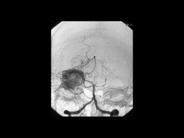 von Hippel-Lindau syndrome. Sagittal vertebral ang