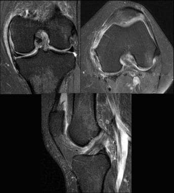 Partial ACL tear (arthroscopically proven). Images