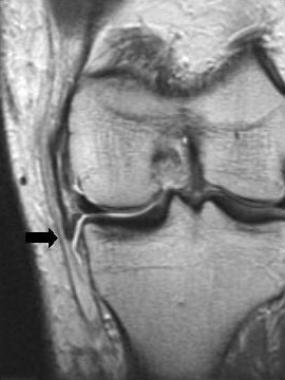 Acute grade III tear with a folded ligament (arrow