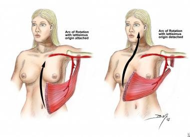 Harvest and arc of rotation of the latissimus dors
