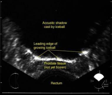 Transrectal sonogram of the prostate during cryoab
